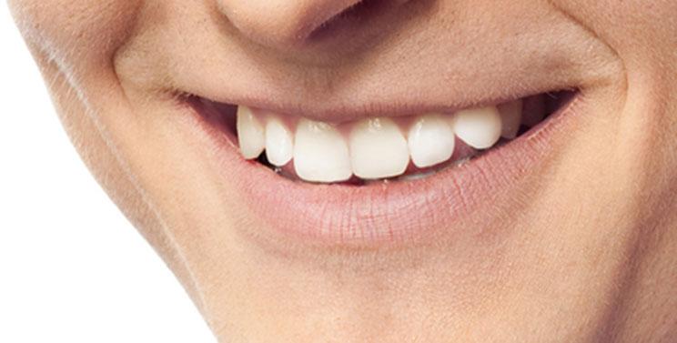 Dentures - Dentist WestLake Village, CA